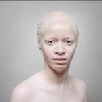 albinos-150x150